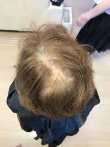 東京銀座 女性の薄毛改善、育毛