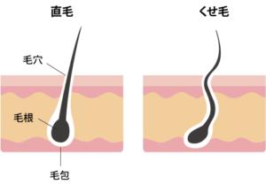 東京銀座くせ毛専門、直毛とくせ毛の違い
